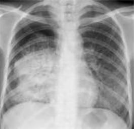 Dense_opacity_of_primary_pulmonary_tuberculosis.jpg