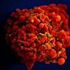 艾滋病CRISPR基因编辑疗法获FDA批准 将进入人体测试阶段