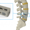 Intelligent Implants完成750万欧元融资  其设备将帮助减少脊柱手术的痛苦